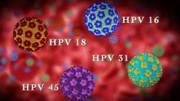"""感染HPV半年,還沒有轉陰?醫生:牢記4件事,""""趕跑""""HPV很容易"""