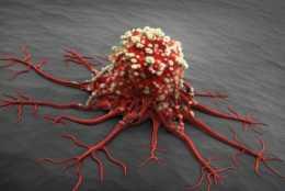 醫生一針見血:真正害死你的不是癌症,而是癌症性格